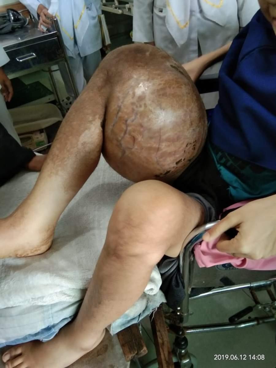 Cintani Derita Kanker Tumor Tulang Ganas, Keluarga Butuh Uluran Tangan